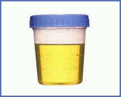 new paradigm change blog  mycotoxin urine tests