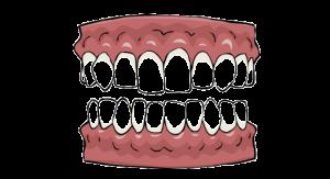Wider Teeth